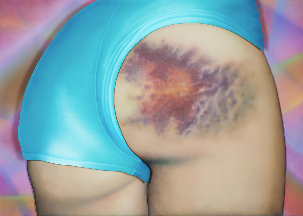 A Finnish Girl Turns Bruises On Girls' Butts Into Art 1