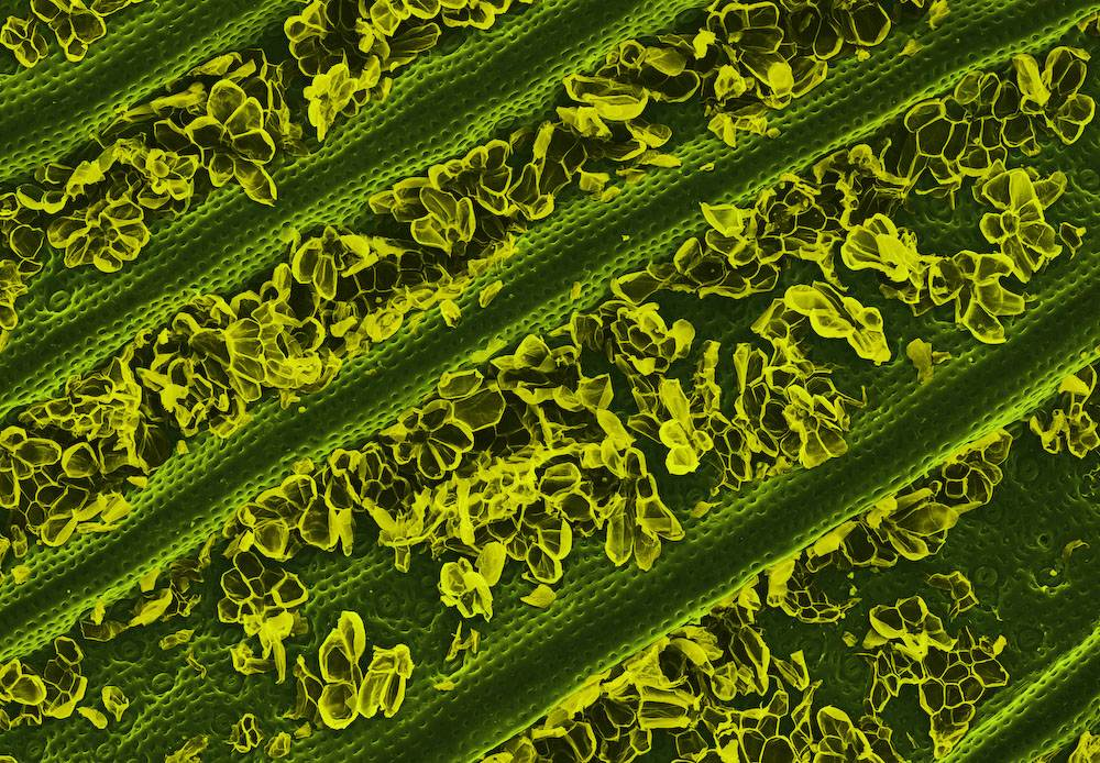 A Pineapple Leaf  Under The Microscope