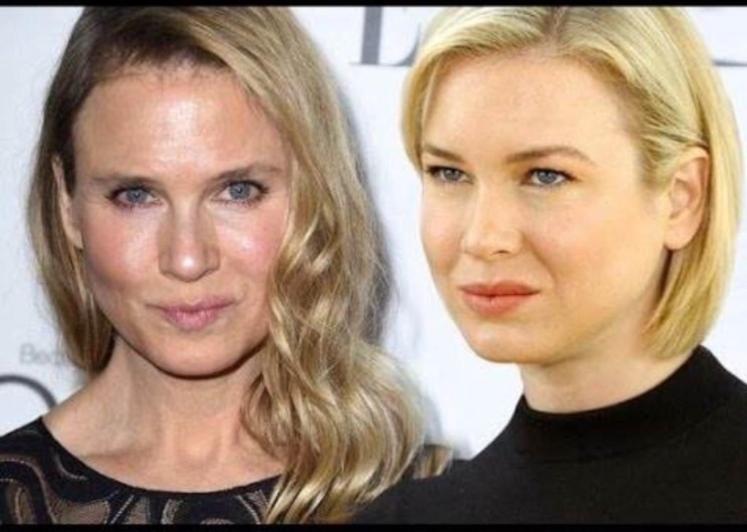 failed-celebs-12-renee-zellweger