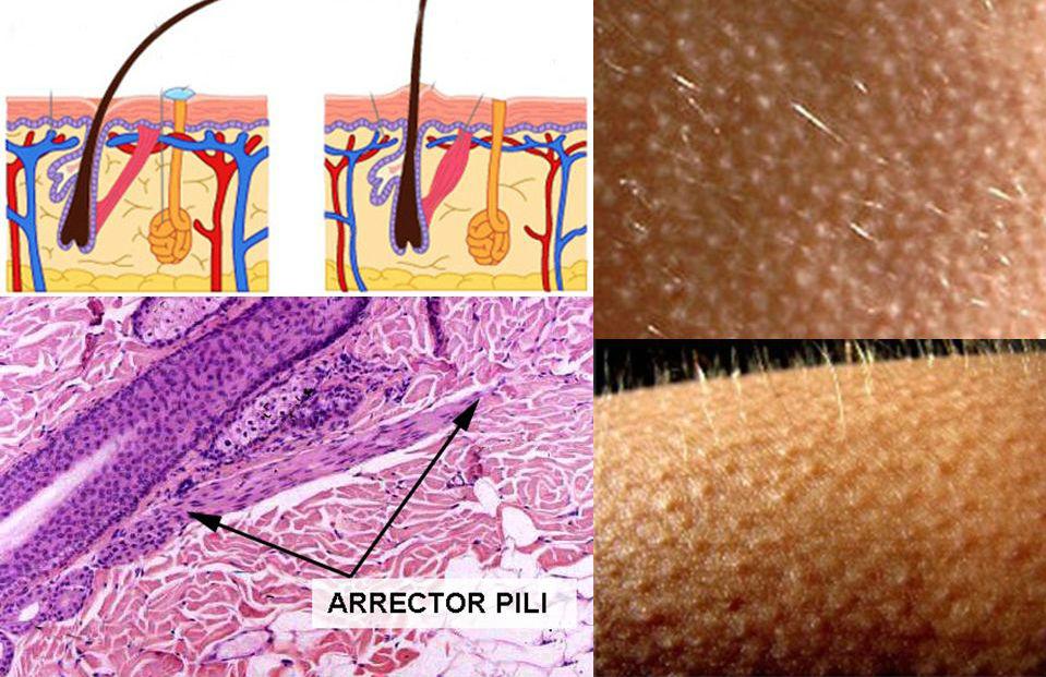 Arrector Pili (músculo liso) | 9 partes do corpo que os humanos realmente não precisam | Brain Berries