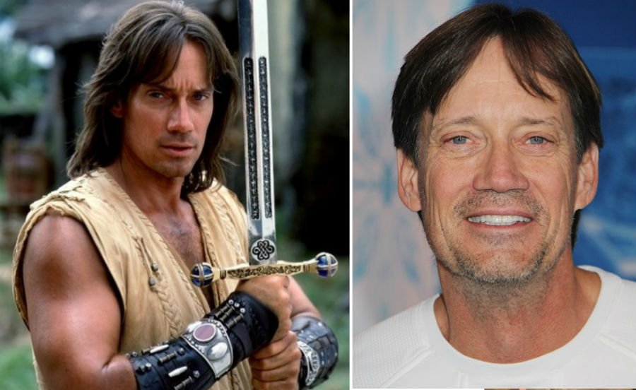 Kevin Sorbo Then Now | Brain Berries