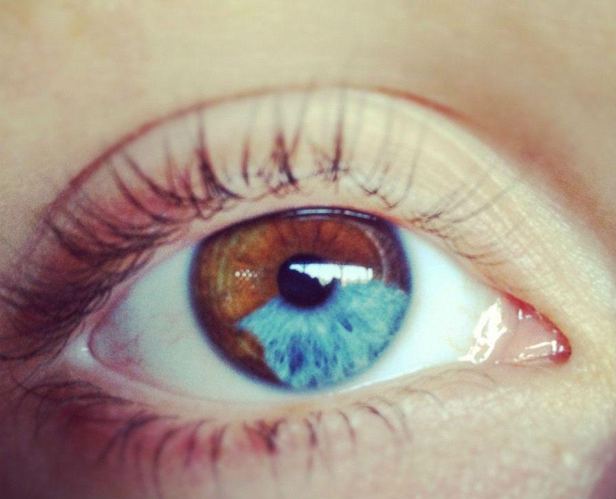 #12 | Những đột biến đẹp ma mị: 15 bức ảnh về những đôi mắt loạn sắc hút hồn | Brain Berries