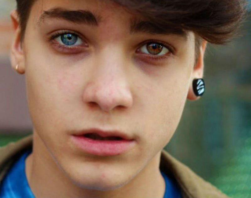 #14 | Những đột biến đẹp ma mị: 15 bức ảnh về những đôi mắt loạn sắc hút hồn | Brain Berries