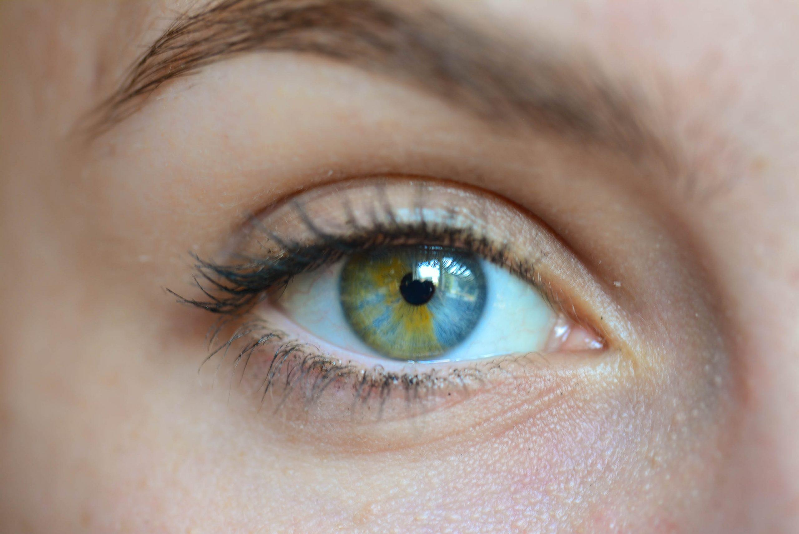 #8 | Những đột biến đẹp ma mị: 15 bức ảnh về những đôi mắt loạn sắc hút hồn | Brain Berries