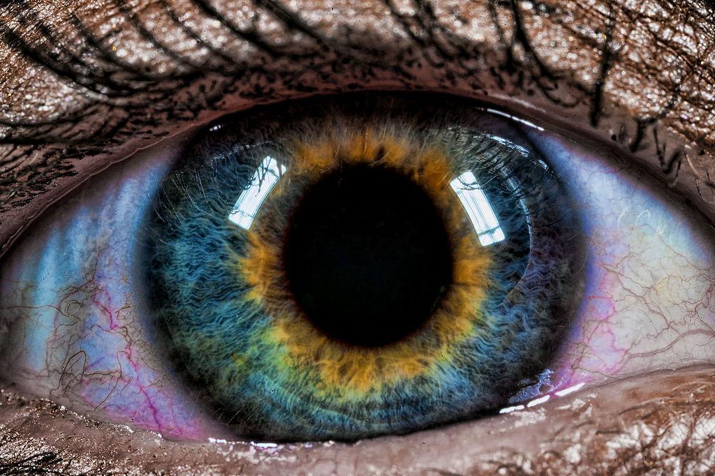 Brain Berries | Những đột biến đẹp ma mị: 15 bức ảnh về những đôi mắt loạn sắc hút hồn