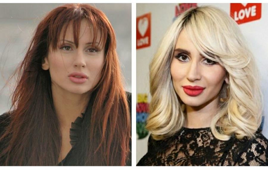 Светлана Лобода   7 российских звезд, которые сотворили невероятное со своей внешностью   ZestRadar