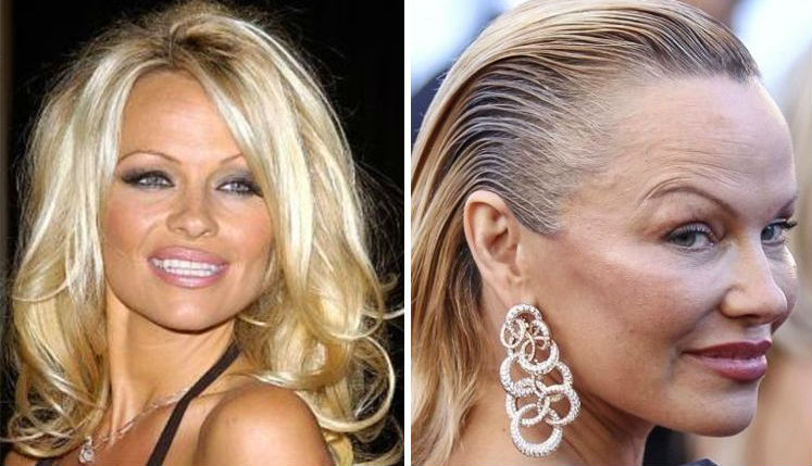 Pamela Anderson | Celebrities Who Have Drastically Changed Over The Years | Brain Berries