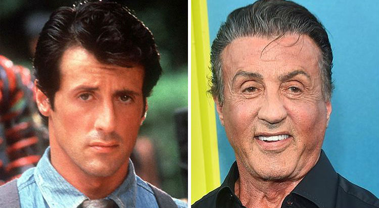 Sylvester Stallone | Celebrities Who Have Drastically Changed Over The Years | Brain Berries