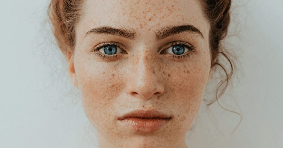 1.What Causes Freckles | 8 Things You Never Knew About Freckles | Brain Berries