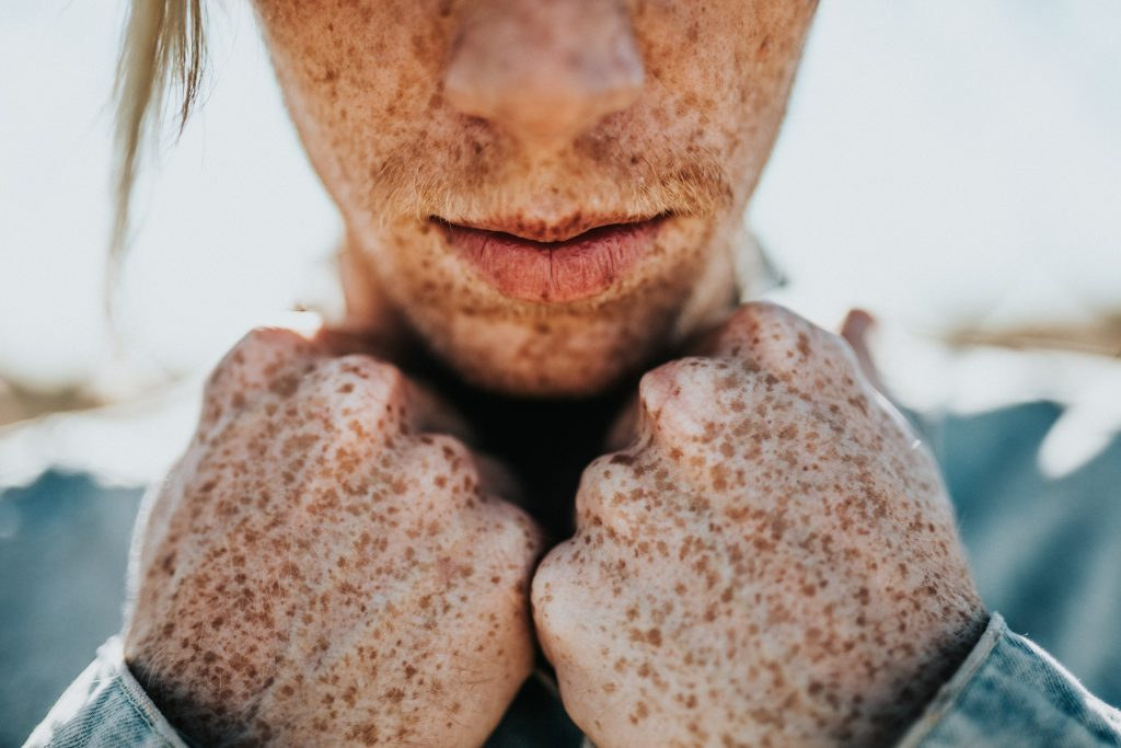 3. Freckles Never Cause Cancer | 8 Things You Never Knew About Freckles | Brain Berries