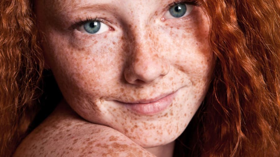 4. Freckles Can Indicate Sun Sensitivity | 8 Things You Never Knew About Freckles | Brain Berries