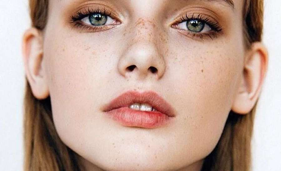 6. Not All Redheads Get Freckles | 8 Things You Never Knew About Freckles | Brain Berries