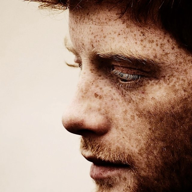 7. Freckles Were The Devil's Mark In Middle Ages | 8 Things You Never Knew About Freckles | Brain Berries