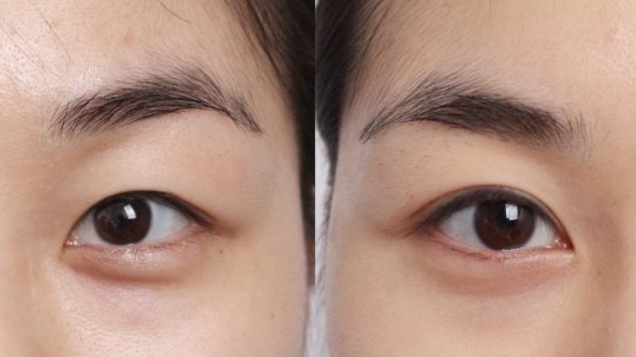 Blepharoplasty | 7 Popular Surgery Procedures In South Korea | Zestaradar