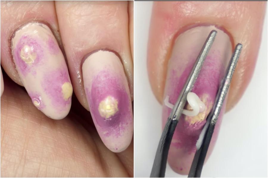 Pimple Nail Art | The Craziest Nail Art Trends | Zestradar