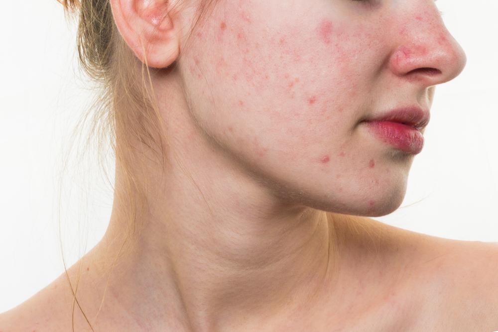 Проблемы с кожей   7 скрытых симптомов COVID-19   Zestradar