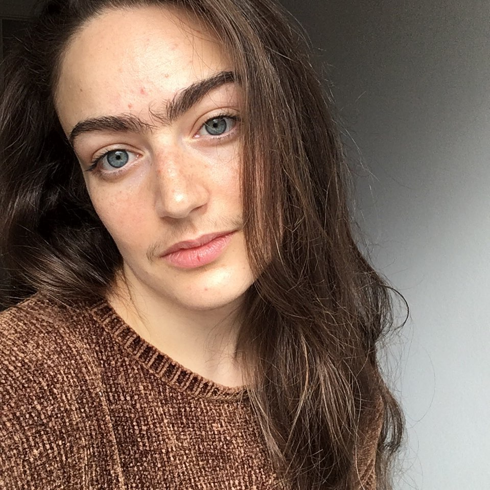 #6   This Woman Stopped Removing Facial Hair For A Year, Here's How it Changed Her Life   Zestradar