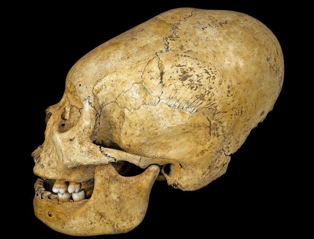 Продолговатые черепа | Тайны ледяного континента: что учёным удалось найти во льдах Антарктиды | Zestradar
