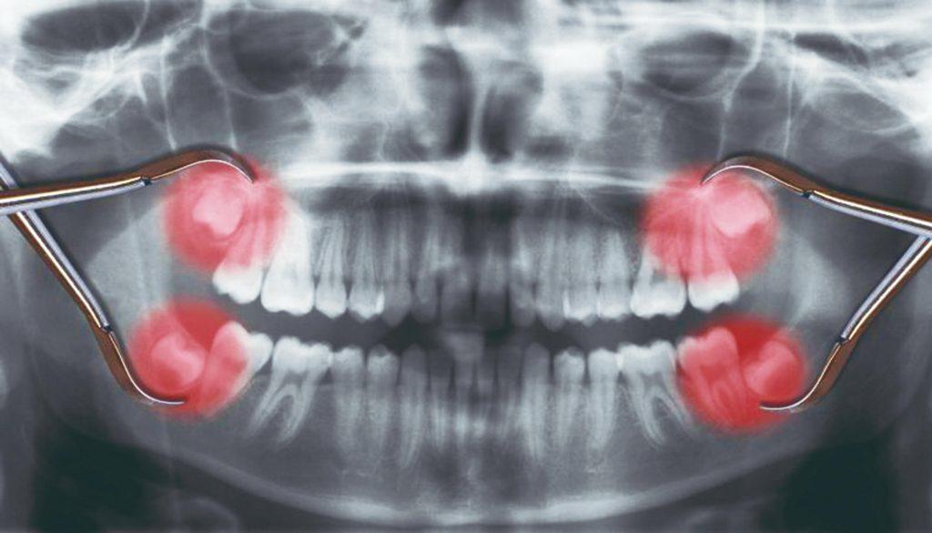 5. Зубы мудрости | 10 частей человеческого тела, которые могут бесследно исчезнуть | Zestradar