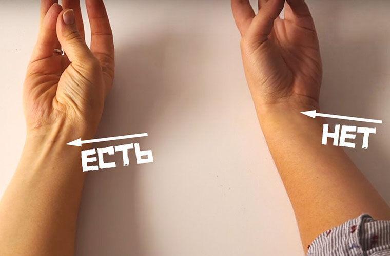 8. Длинная ладонная мышца | 10 частей человеческого тела, которые могут бесследно исчезнуть | Zestradar