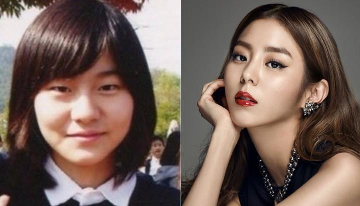 Юи, «After School»   K-Pop звезды до и после пластических операций   Zestradar