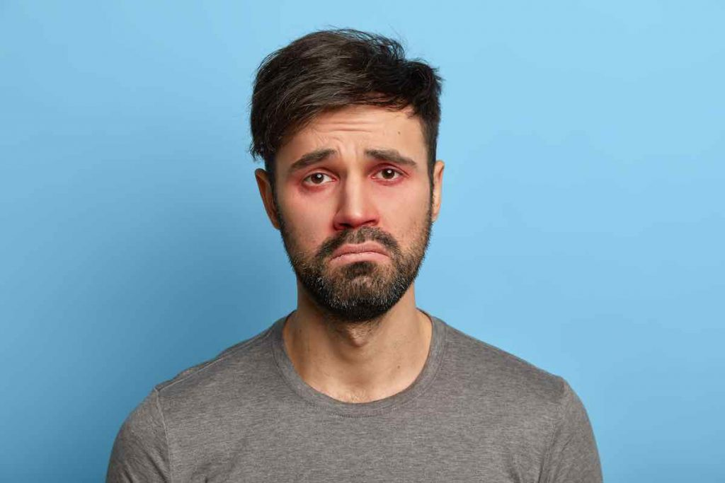 Покраснение глаз   10 явных признаков того, что вы уже переболели COVID-19   Zestradar