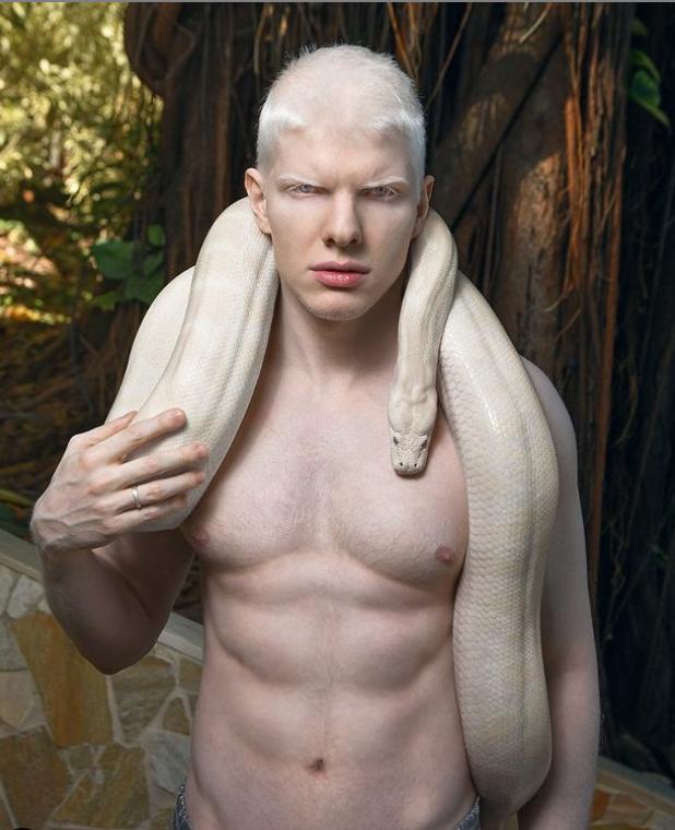 #2 | Уникальная красота: 10 успешных моделей-альбиносов, которые покорили мир моды | Zestradar