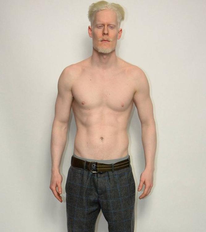 #5 | Уникальная красота: 10 успешных моделей-альбиносов, которые покорили мир моды | Zestradar