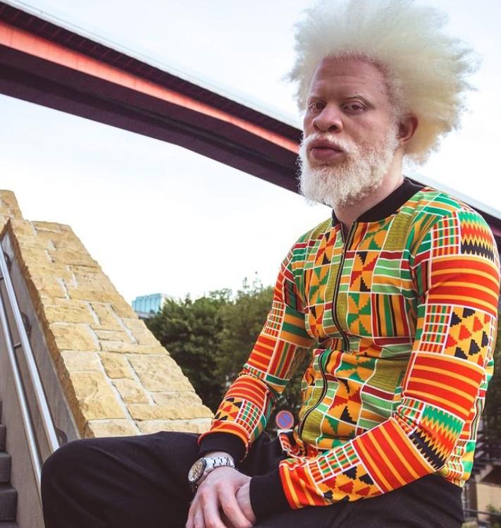 #6 | Уникальная красота: 10 успешных моделей-альбиносов, которые покорили мир моды | Zestradar