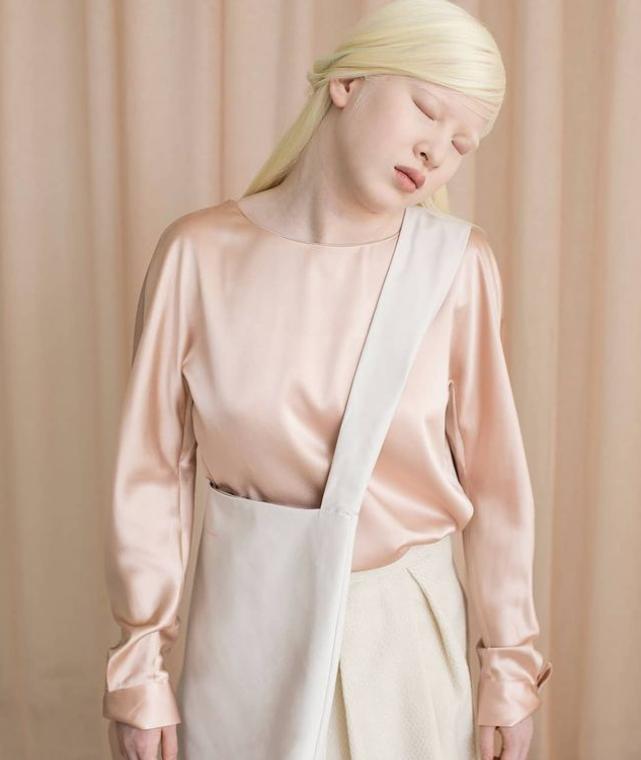 #7 | Уникальная красота: 10 успешных моделей-альбиносов, которые покорили мир моды | Zestradar