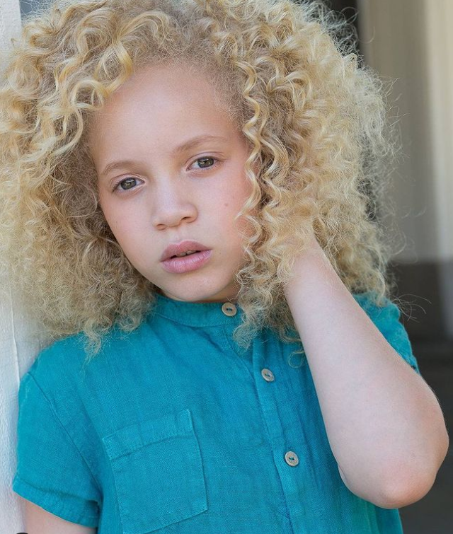 #9 | Уникальная красота: 10 успешных моделей-альбиносов, которые покорили мир моды | Zestradar