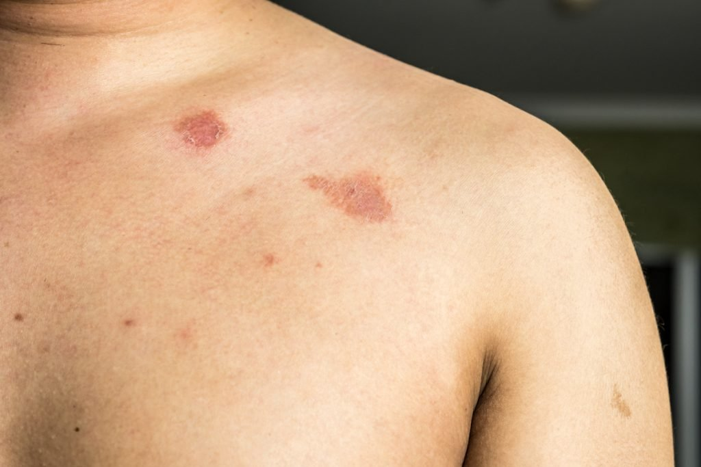Ringworm   The Worst Diseases You Can Get From a Dirty Gym   Zestradar