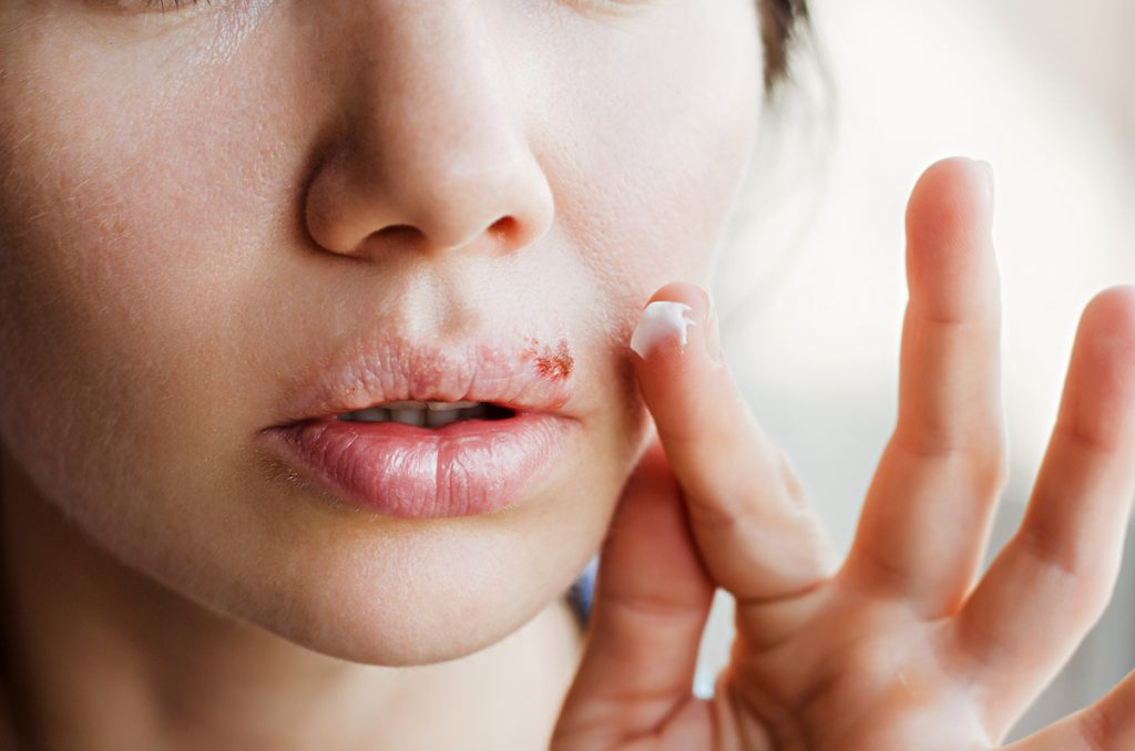 Herpes   The Worst Diseases You Can Get From a Dirty Gym   Zestradar