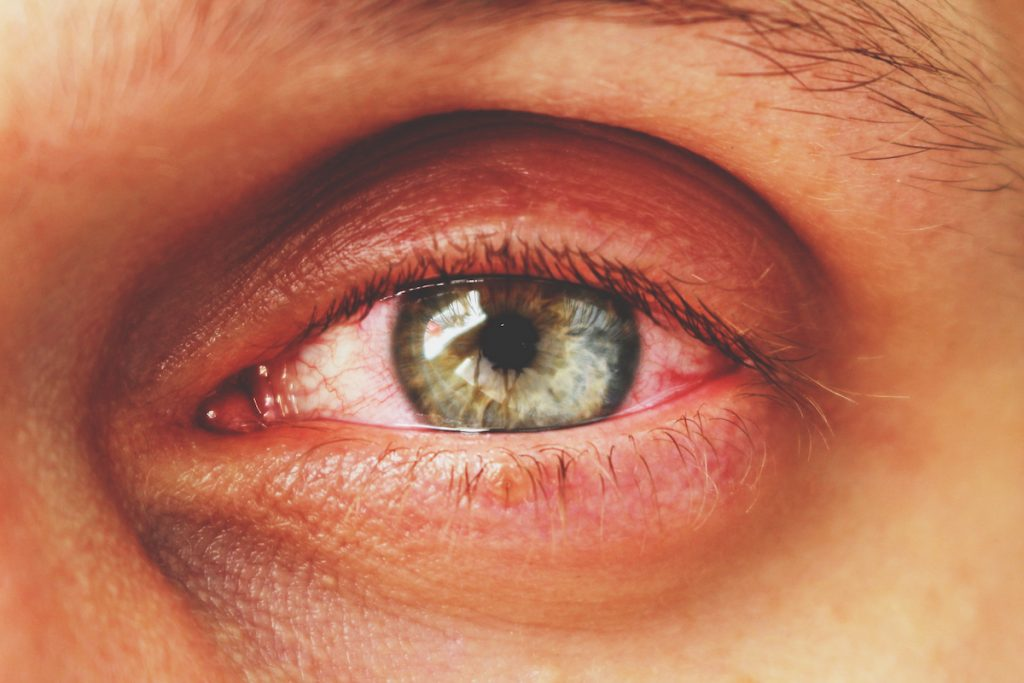 Pink Eye   The Worst Diseases You Can Get From a Dirty Gym   Zestradar